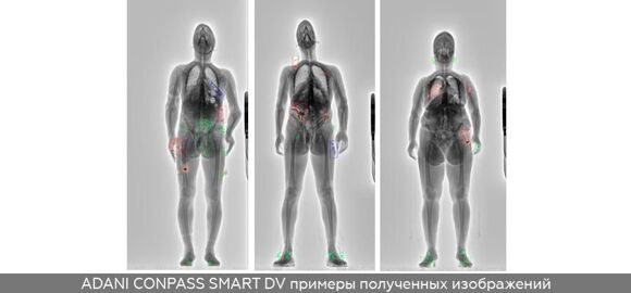 ADANI-CONPASS-SMART-DV-X-ray-images-RU